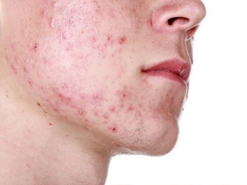 Cần bỏ túi các giải pháp chăm sóc cho da mụn để phòng ngừa mụn và tránh mụn phát triển