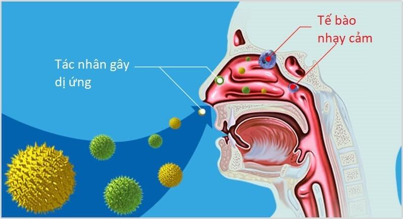 Tác nhân gây dị ứng là nguyên nhân gây viêm mũi dị ứng