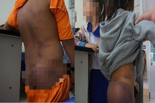 Bốn học sinh bị ông bà và hai chị đánh tím người, đa chấn thương vì nghịch nước