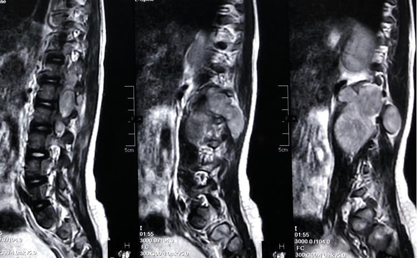 Bé gái Thanh Hóa mắc bệnh hiểm bị nhiều bệnh viện từ chối điều trị đã hồi sinh kỳ diệu