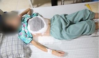 Nghe lời 'thầy lang' chữa ung thư, người phụ nữ trẻ đau đớn mất đi một bên ngực
