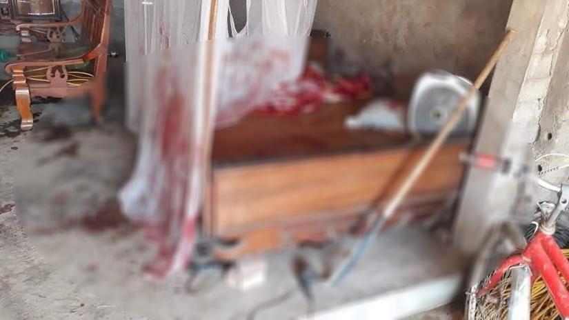 Bố bé trai bị chú chém lìa tay ở Bắc Giang đau đớn kể lại sự việc