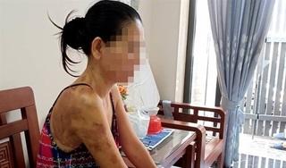 Tin mới nhất vụ người phụ nữ tạt chảo dầu đang sôi vào người hàng xóm