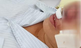 Whitmore - căn bệnh truyền nhiễm vừa khiến 4 người tử vong nguy hiểm thế nào?