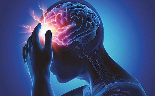 Bấm huyệt chữa tai biến và di chứng tai biến mạch máu não