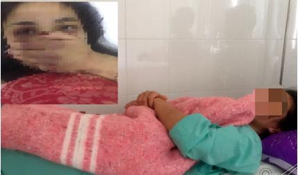 Nữ thực tập sinh tố bị bác sĩ BV TW Huế gạ tình, đánh đập đến nhập viện
