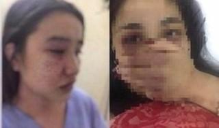 Bộ Y tế nói gì về vụ nữ sinh thực tập tố bị bác sĩ gạ tình, đánh đập?