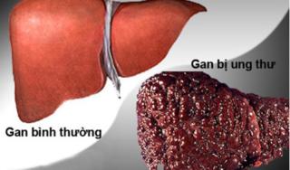 Nguyên nhân nào gây ra căn bệnh ung thư có tỷ lệ mắc mới nhiều nhất Việt Nam?