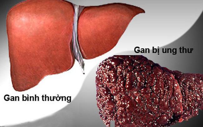 Nguyên nhân nào gây ra căn bệnh ung thư có tỷ lệ mắc mới nhiều nhất tại Việt Nam 2