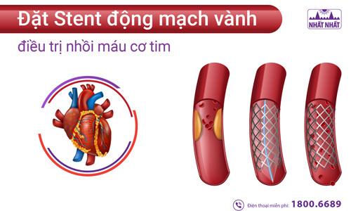đặt stent động mạch vành