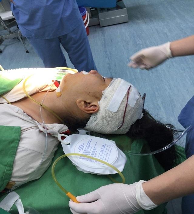 Kinh hoàng: Xích mích với bạn, bé gái 10 tuổi  bị kéo đâm vào đầu 2