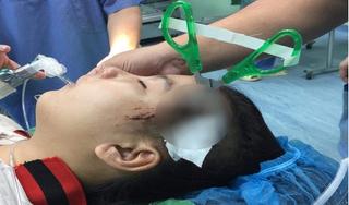 SỐC: Bé gái 10 tuổi bị bạn cùng trường dùng kéo đâm thủng sọ não
