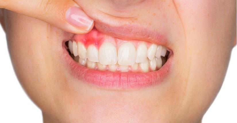 đau răng sưng lợi