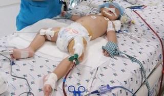Bé gái bị viêm phổi nặng, suy hô hấp nguy kịch được cứu sống nhờ kỹ thuật mới