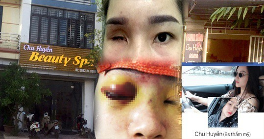 Nâng mũi tại cơ sở làm đẹp, cô gái bị mù vĩnh viễn3