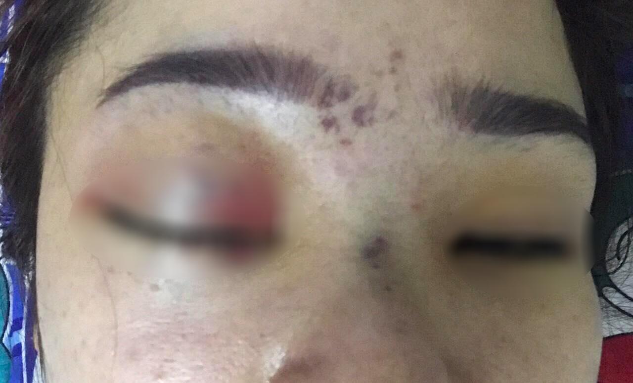 Chủ spa nơi cô gái nâng mũi bị mù mắt từng bị đình chỉ hoạt động