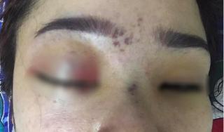 Spa nơi cô gái nâng mũi bị mù mắt từng bị đình chỉ hoạt động