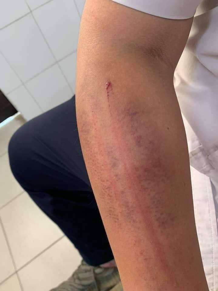 Nghi án bố ruột dùng dây điện đánh con bầm tím ở Hà Nội