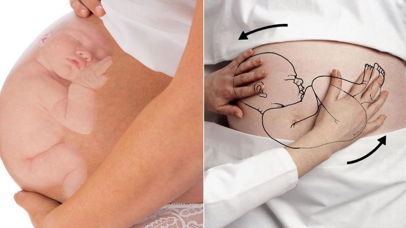 u xơ tử cung khi mang thai