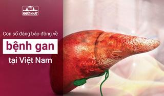 Con số đáng báo động về bệnh gan tại Việt Nam