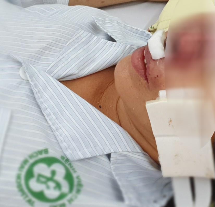 Bệnh Whitmore bị chuẩn đoán nhầm thành lao phổi, ung thư