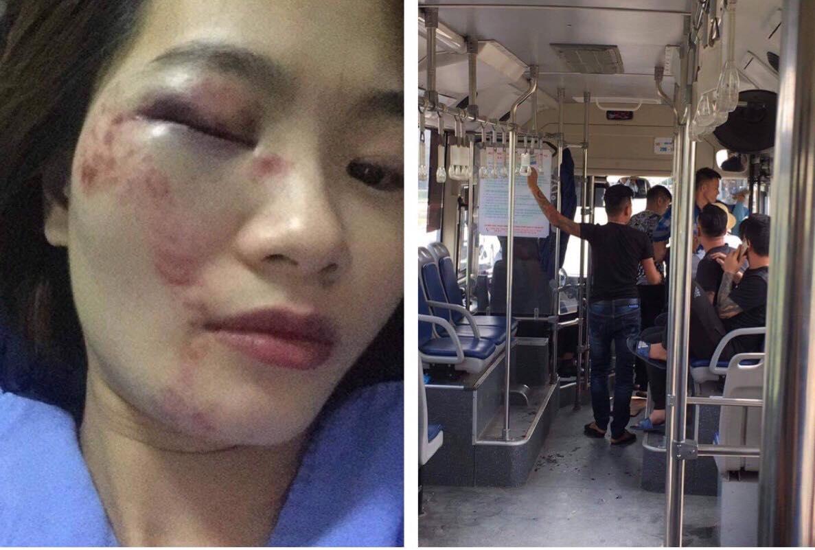 Nhắc nhở hành khách, nữ nhân viên xe buýt bị 4 thanh niên đánh nhập viện