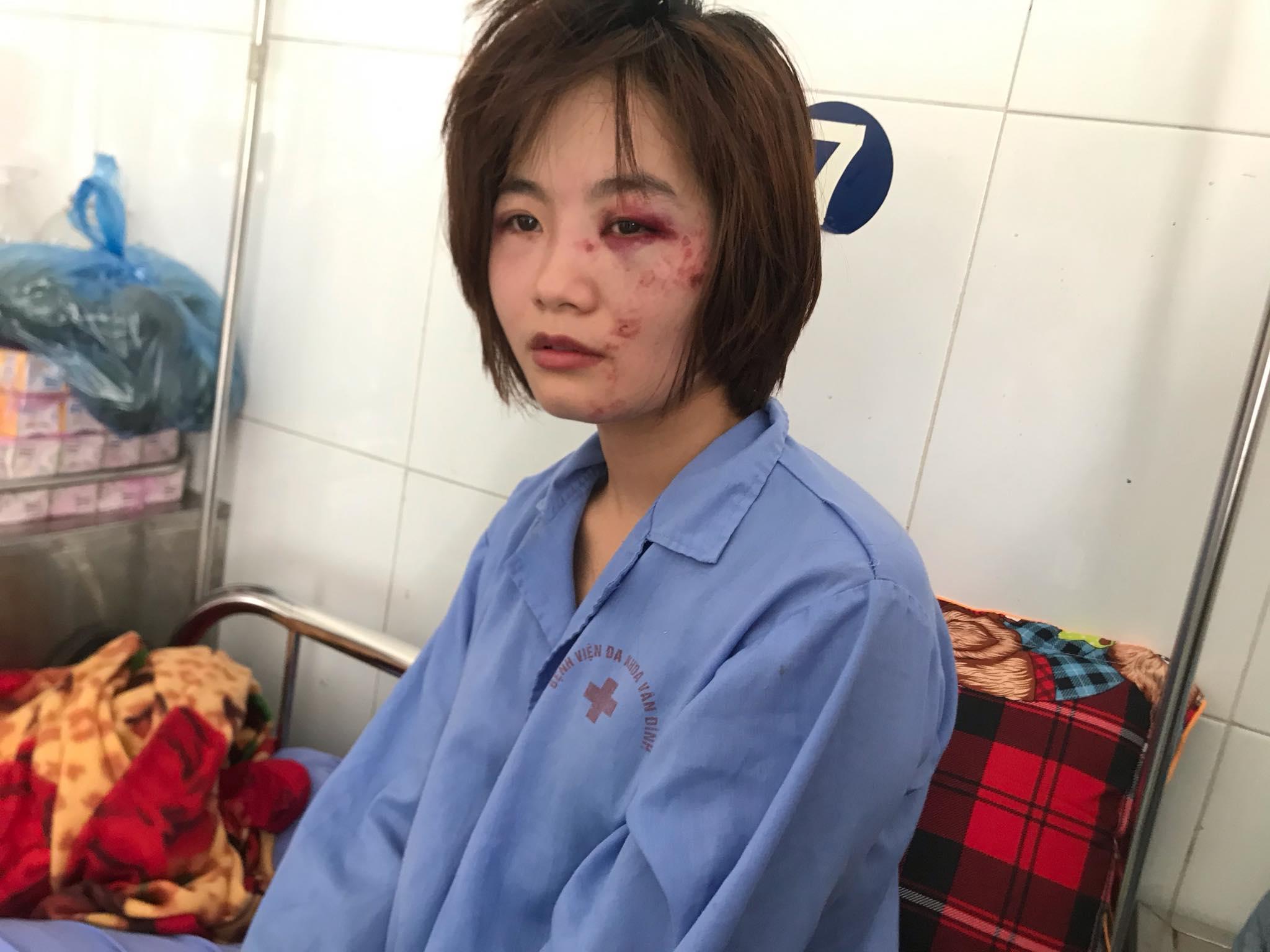 Nữ nhân viên xe buýt đau đớn kể lại giây phút bị 4 thanh niên đánh hội đồng