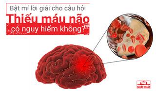 """Bật mí lời giải cho câu hỏi """"Thiếu máu não có nguy hiểm không?"""""""