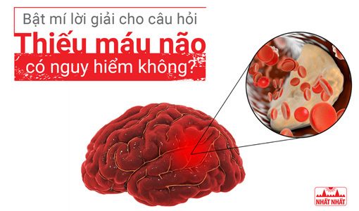 thiếu máu não có nguy hiểm không