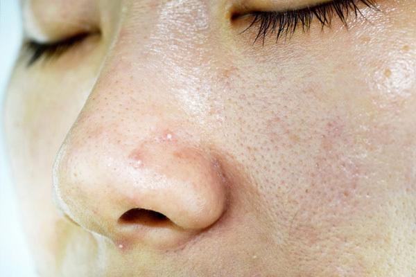 dấu hiệu nhận biết da nhờn