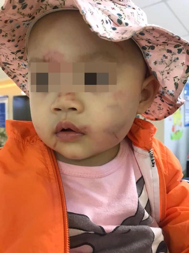 Bé gái hơn 14 tháng tuổi bầm tím mặt sau ngày đầu đi học
