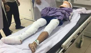 Nam sinh lớp 7 ở Nghệ An vĩnh viễn mất 2 tay vì bị phóng điện