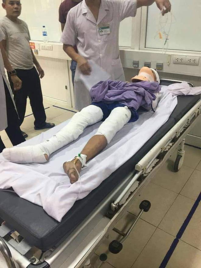 Nam sinh lớp 7 ở Nghệ An vĩnh viễn mất 2 tay vì bị phóng điện 2