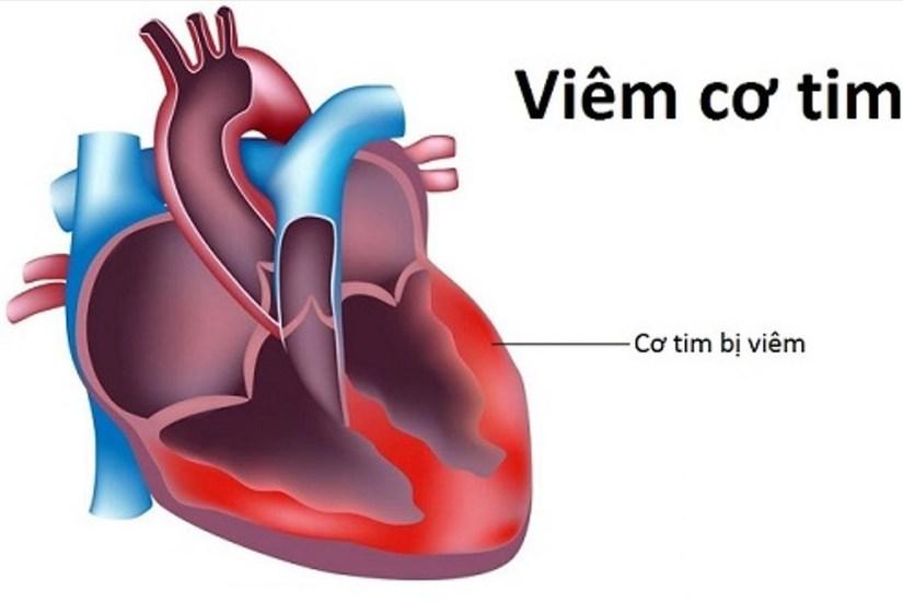 PGS.TS Nguyễn Lân Hiếu giải đáp tất tần tật về bệnh viêm cơ tim đang gây xôn xao mạng xã hội 2