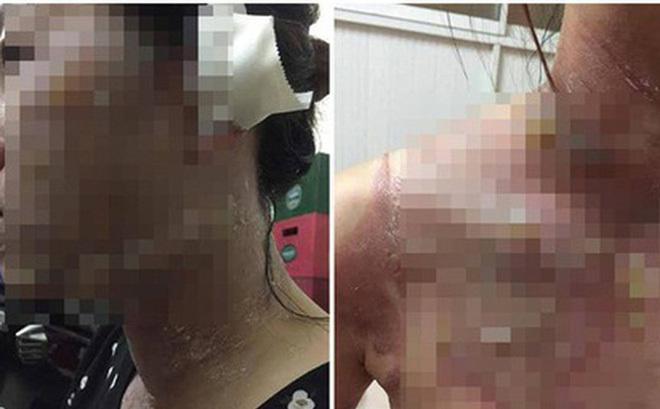 Hải Phòng: Ôm tiền đi chơi hụi bị vỡ, chồng dội nước sôi lên người vợ