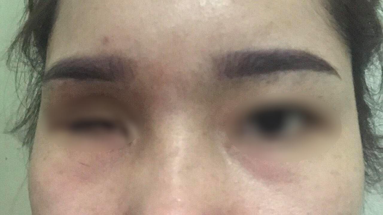 Cô gái 21 tuổi bị mù mắt sau khi đi nâng mũi ở spa