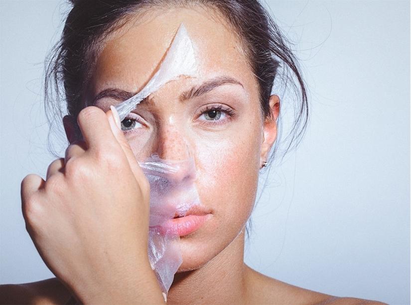 dị ứng và sạm nám da