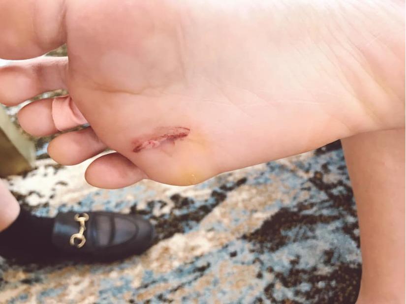 Khả Ngân rách chân khi bị xô hồ bơi ở lễ cưới Đông Nhi - Ông Cao Thắng