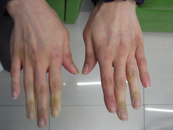10 biểu hiện bất thường trên tay đang ngầm tố cáo hàng loạt vấn đề sức khỏe mà bạn không ngờ đến - Ảnh 3.