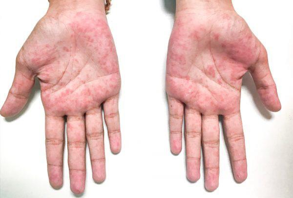 10 biểu hiện bất thường trên tay đang ngầm tố cáo hàng loạt vấn đề sức khỏe mà bạn không ngờ đến - Ảnh 8.