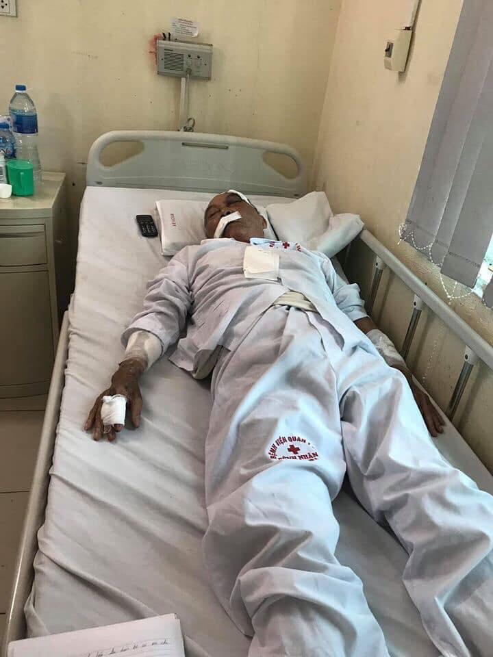 Cụ ông 80 tuổi bị gã xe ôm đánh nhập viện đau đớn kể lại sự việc