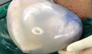 Hy hữu: Hai bé song sinh chào đời còn nguyên trong bọc ối hình trái tim