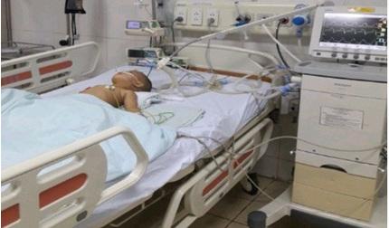 Bé trai 17 tháng tuổi tím tái, hôn mê vì bị hóc hạt hướng dương
