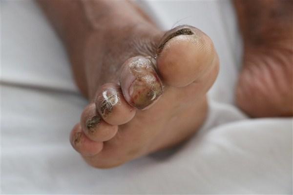 Bệnh whitmore lây qua đường nào và ai có thể mắc bệnh? 2
