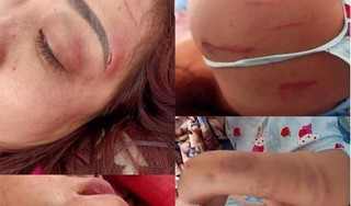 Người vợ bị chồng đánh dã man, quay clip tung lên mạng giờ ra sao?
