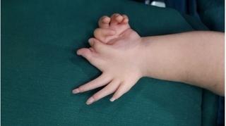 Giải cứu những đôi bàn tay bé nhỏ bị dị tật bẩm sinh