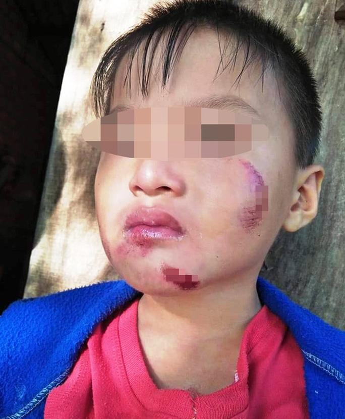 Nghi mẹ đẻ bạo hành con trai 6 tuổi bầm tím khắp cơ thể