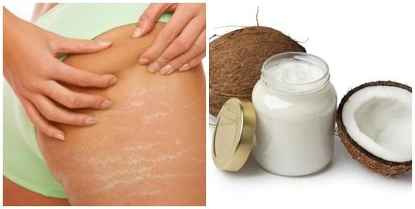 Trị rạn da đơn giản, hiệu quả từ những nguyên liệu tự nhiên