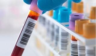 Có thể dự đoán tuổi thọ con người thông qua xét nghiệm máu