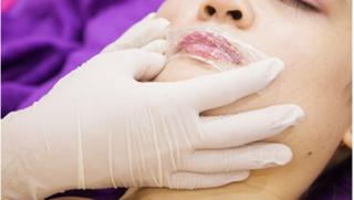 Chuyên gia nói gì về những biến chứng khi ủ tê trong phun xăm môi?
